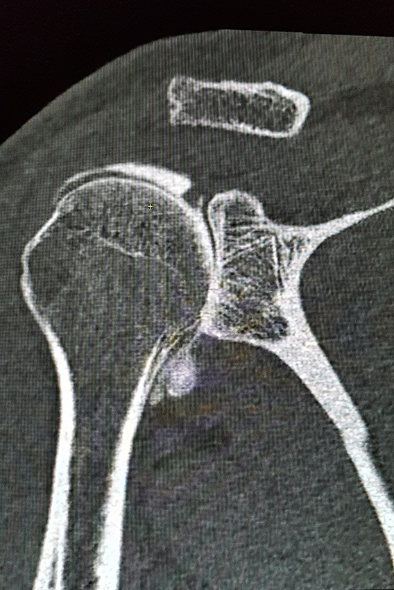Arthro-Scanner