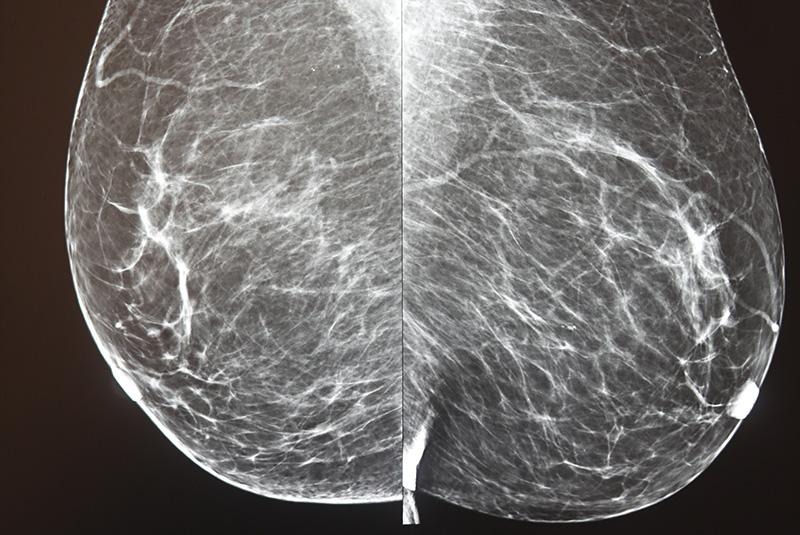 Mammographie et exploration des seins