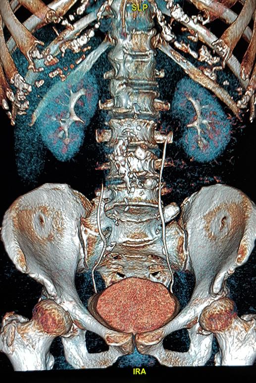Urographie intraveineuse – Uroscanner
